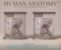 «Human Anatomy : Stereoscopic Images of Medical Specimens»